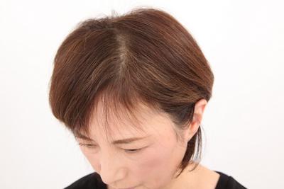ヘナ100%_before_生え際_カラーリング